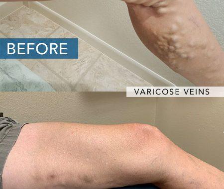 Varicose Vein Treatment Las Vegas