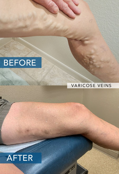 Varicose Vein Treatment Las Vegas