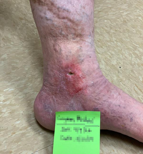 After-Leg Ulcer Patient