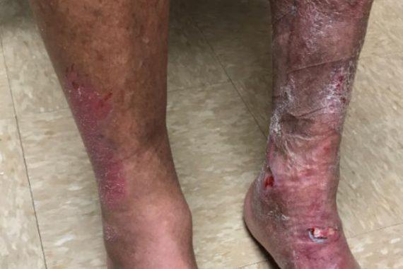 Vein Treatment Patient Before