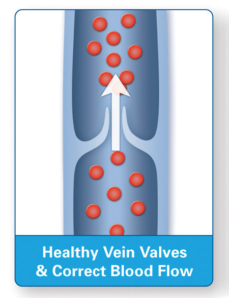 Healthy Vein Flow