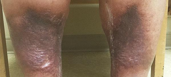 Leg Skin Discoloration Treatment