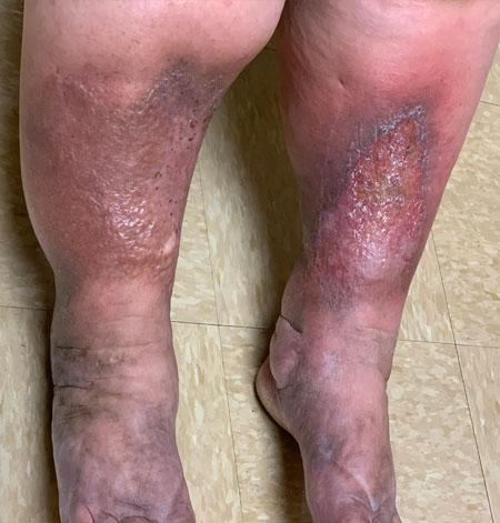 Severe Leg Itching