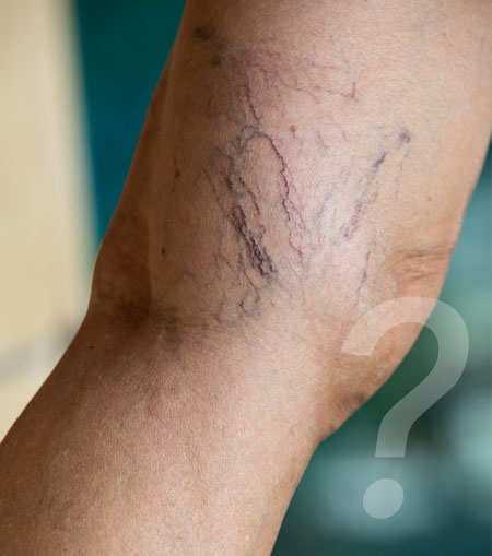 Sclerotherapy Doctor Las Vegas