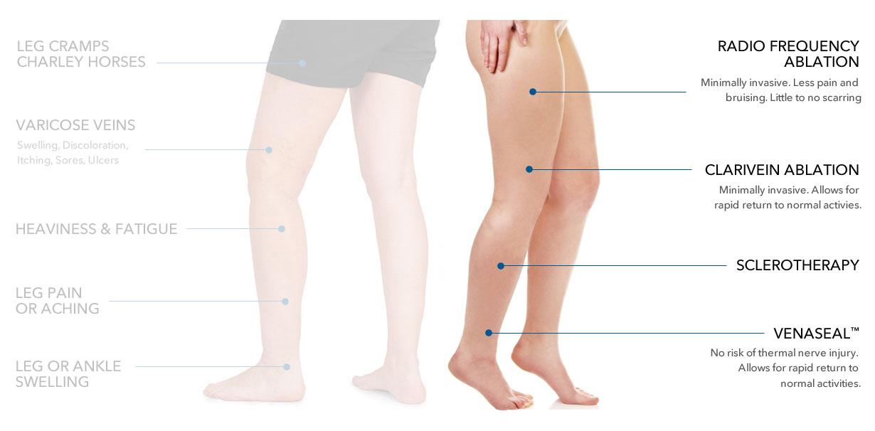 Leg Pain Treatments