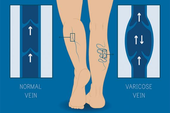 WHAT IS VEIN DISEASE? 2