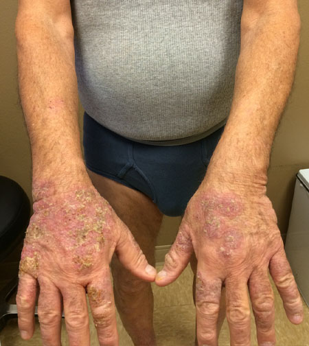 Itching Hands Venous Insufficiency