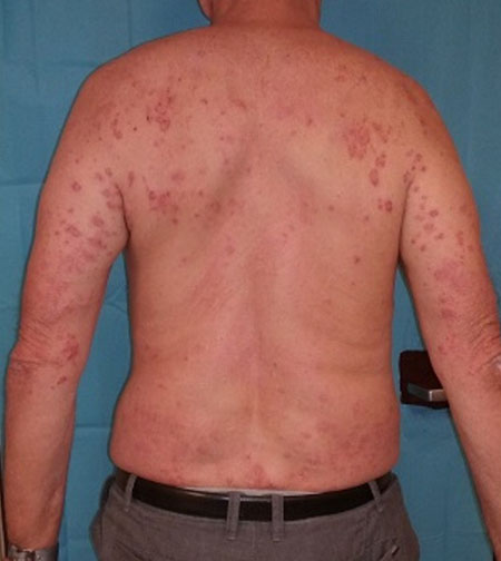 Itching Venous Insufficiency