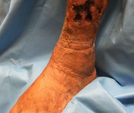 Leg Ulcer Doctor Las Vegas