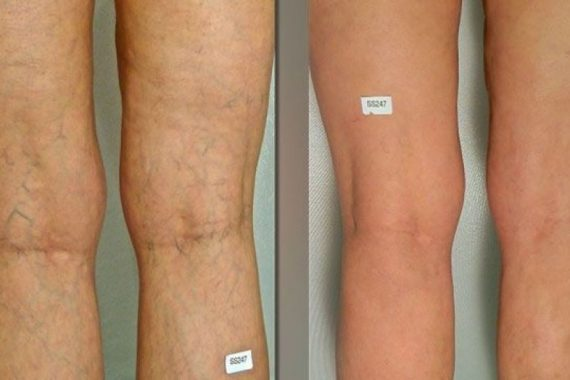 Cosmetic Vein Therapy Vs. Treating The Underlying Cause at Alpha Vein Clinic! 2