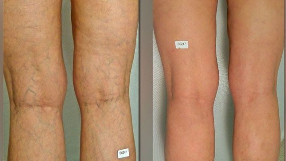 Cosmetic Vein Therapy Vs. Treating The Underlying Cause at Alpha Vein Clinic! 1