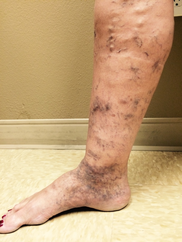 sclerotherapy