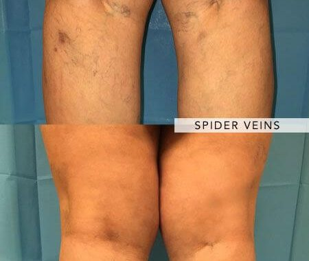 Varicose Veins Vs. Spider Veins