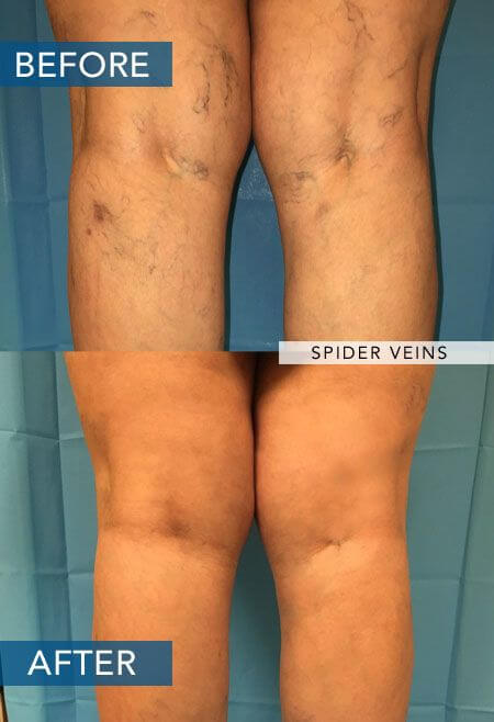 spider vein treatment in las vegas