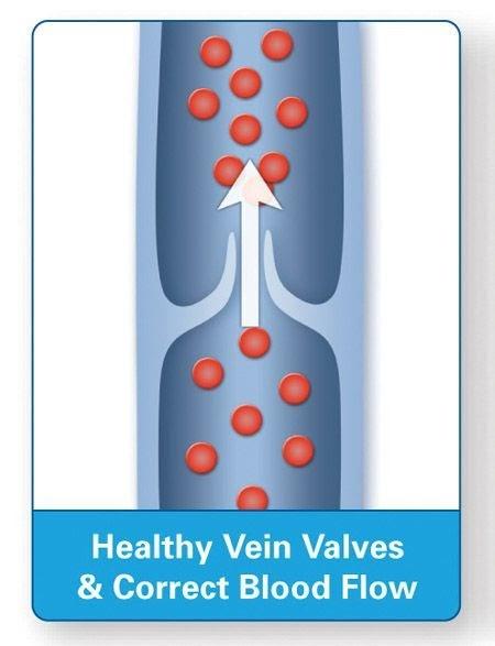 RLS - Healthy Legs