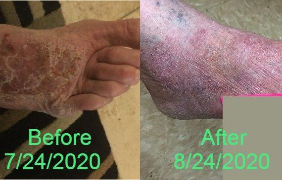 Skin Itchiness